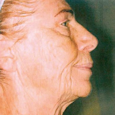twarz-przed